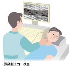 超音波エコー検査(胸部・頸動脈)